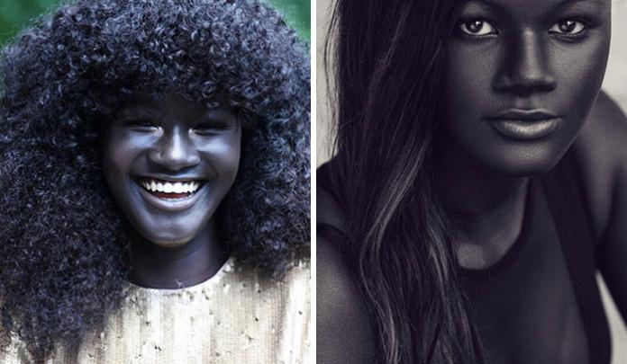 Незвичний колір шкіри, з якого усі сміялися, зробив з цієї дівчини успішну модель