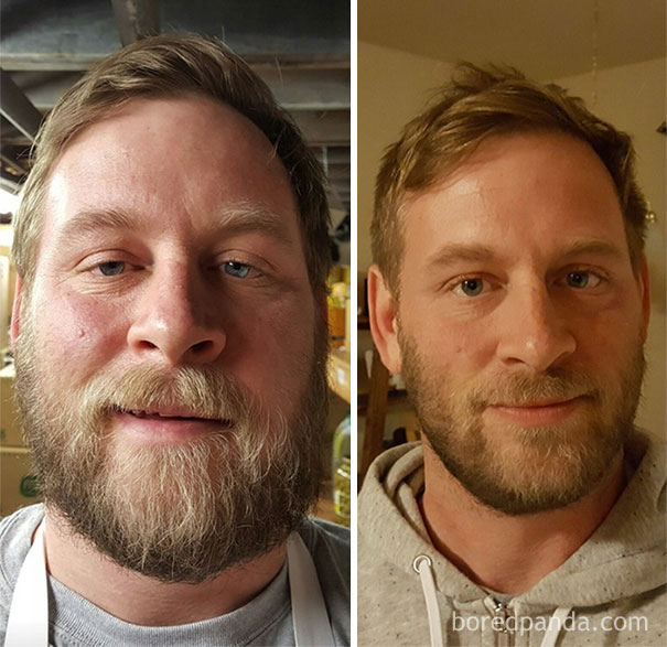 before-after-sobriety-photos-61