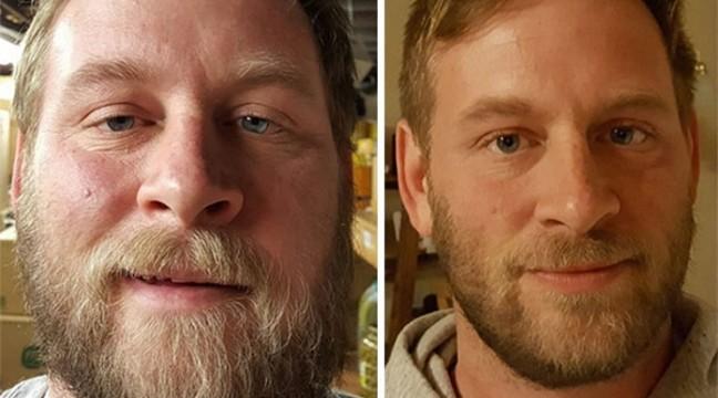 10 фото До і Після: що стається, коли ви перестаєте вживати алкоголь