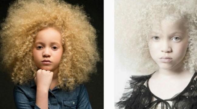 8-річна дівчинка-альбінос Ава Кларк стала новою зіркою світу моди