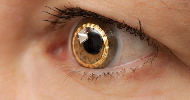 770310-Lens-1489133771-650-a4da00bae2-1489160435