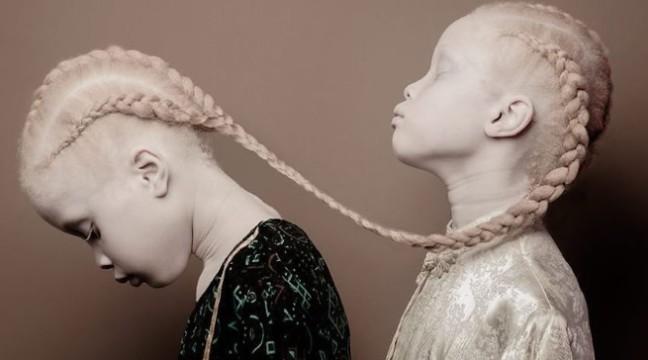 Близнюки-альбіноси з Бразилії перевернули модну індустрію з ніг на голову